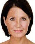 Solskador - pigment behandling med IPL skinrejuvenation