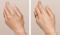 Restylane-hand