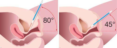 incontilase, laserbehandling för incontinens