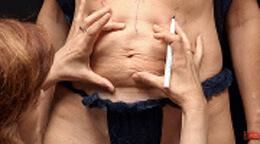 Huduppstramning graviditets mage DermaCenter