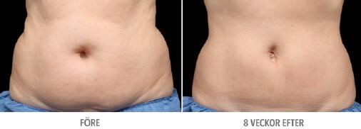 Mage före och efter CoolSculpting DermaCenter