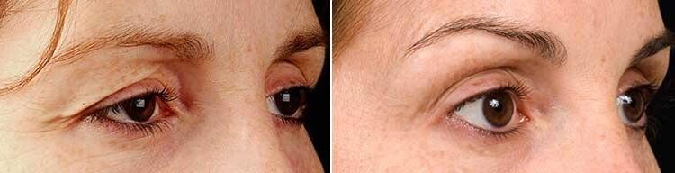Thermage ögon före och efter dermacenter